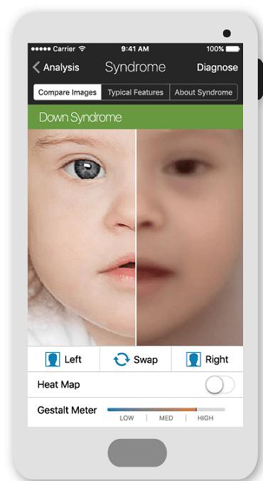 Face2Gene app for rare genetic disorders